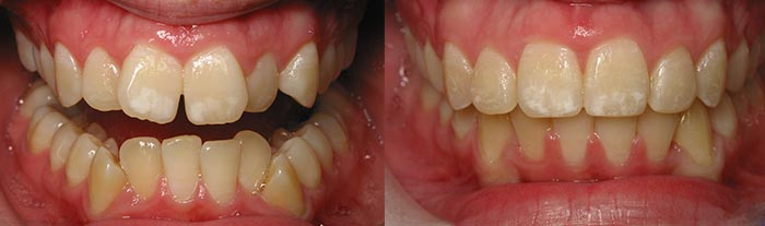 Six Month Smiles - Before and After