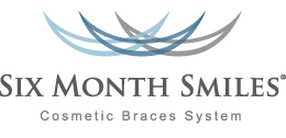Six Month Smiles Braces - Tucker Dental